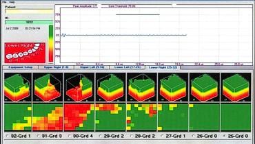 CAVITAT® Stuttgart | Zahnarzt Praxis Dr. Grobler Stuttgart ( Baden Württemberg ) | CAVITAT® statt Ultraschall